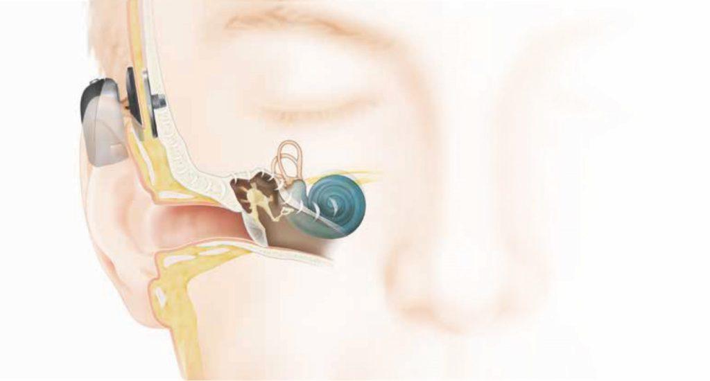 人口内耳とは12